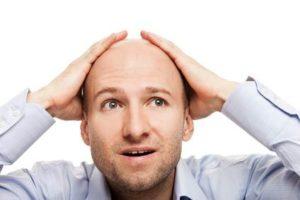 Testosteron Haarausfall